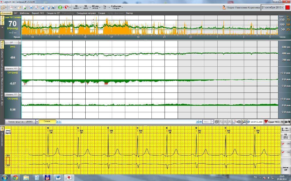 Окно трендов ST, QT, ЧСС, ЭКГ, акселерометра в программе Cardiospy